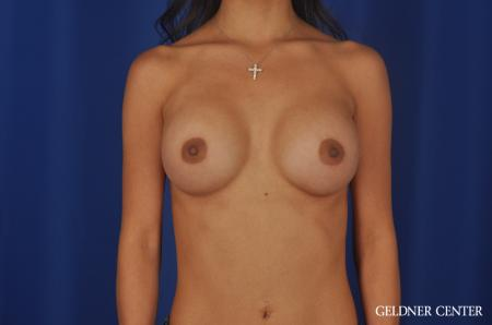 Breast Augmentation Lake Shore Dr, Chicago 5545 -  After Image 1