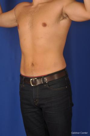 Liposuction For Men: Patient 4 - After Image 5