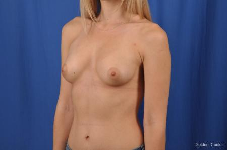 Breast Augmentation: Patient 149 - After Image 4