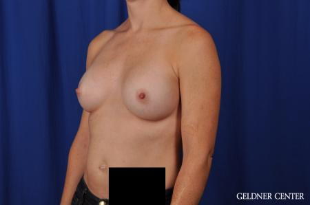 Breast Augmentation Lake Shore Dr, Chicago 4286 -  After Image 4