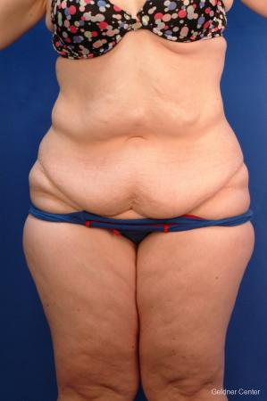 Tummy Tuck: Patient 10 - Before Image 1