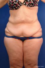 Tummy Tuck: Patient 10 - Before