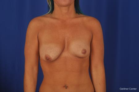 Chicago Complex Breast Augmentation 2336 - Before Image