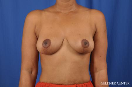 Breast Lift: Patient 38 - After Image 1