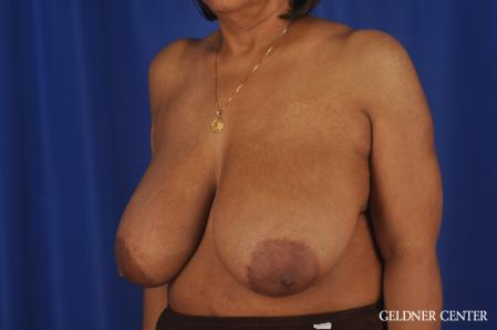 Breast Reduction: Patient 35 - Before and After Image 4