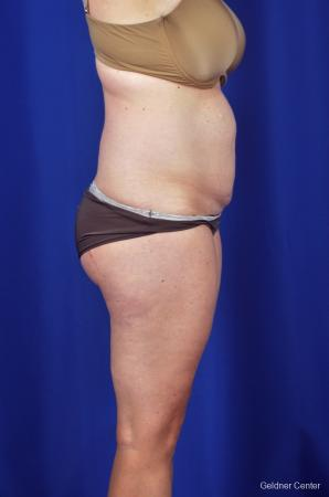 Liposuction: Patient 6 - Before Image 3