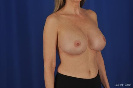 Complex Breast Augmentation Lake Shore Dr, Chicago 2389 -  After Image 2
