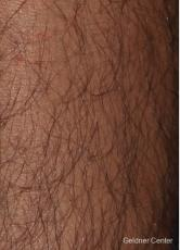 Hair reduction patient 2317 before and after photos - Before Image