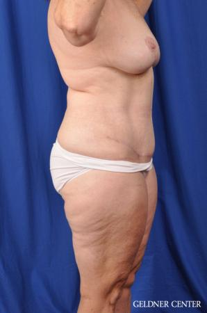 Abdominoplasty Patient 1 before and after photos -  After Image 3