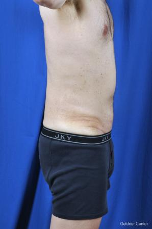 Liposuction For Men: Patient 8 - After Image 3