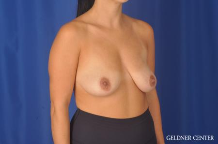 Breast Lift: Patient 23 - Before 3