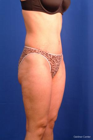 Liposuction: Patient 9 - After Image 2