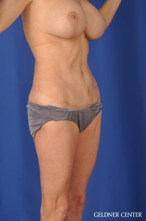 Liposuction: Patient 37 - After 2