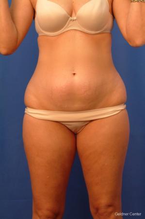 Liposuction: Patient 15 - Before Image