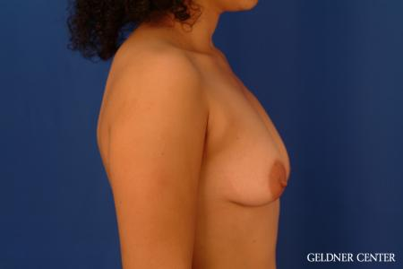 Breast Augmentation: Patient 160 - Before Image 3