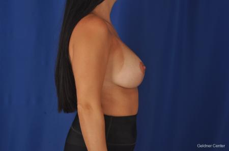 Breast Augmentation: Patient 78 - After Image 2