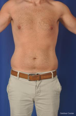 Liposuction-for-men: Patient 3 - Before Image