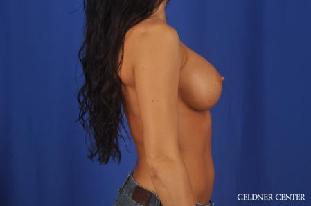 Breast Augmentation: Patient 175 - After 3