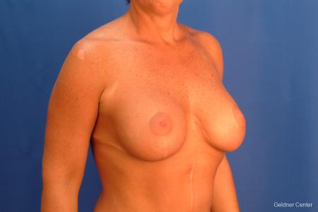 Chicago Breast Augmentation 2524 -  After Image 2