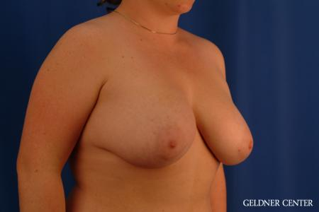 Breast Reduction: Patient 34 - Before Image 2