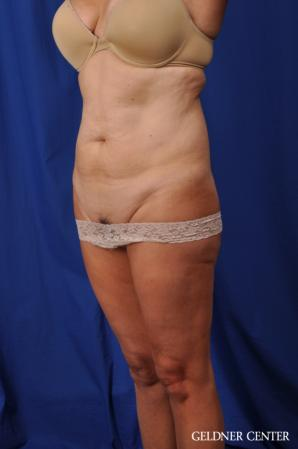 Liposuction: Patient 43 - Before and After 5