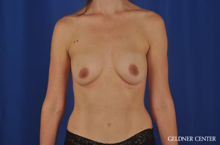 Chicago Breast Augmentation 4002 - Before Image 1