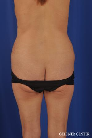 Liposuction: Patient 37 - Before and After Image 4