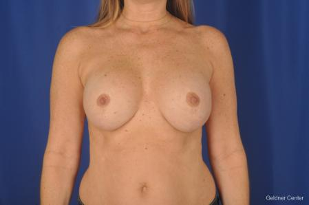 Breast Augmentation: Patient 158 - After Image 1