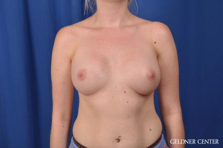 Breast Augmentation: Patient 137 - After Image 1