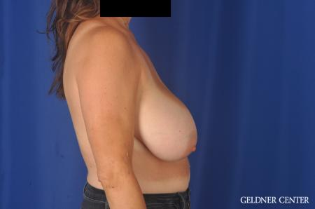 Breast Reduction: Patient 13 - Before Image 2