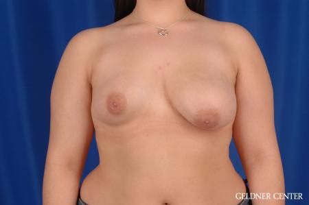 Breast Lift Hinsdale, Chicago 2615 - Before Image 1