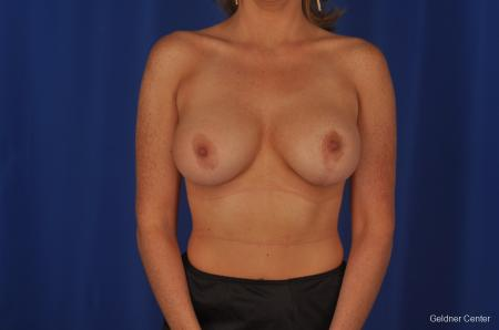 Chicago Breast Lift 2401 -  After Image 1