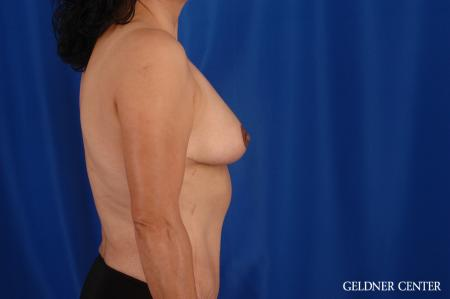 Breast Reduction Hinsdale, Chicago 2630 -  After 2
