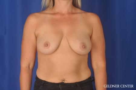 Breast Augmentation: Patient 80 - Before Image 1