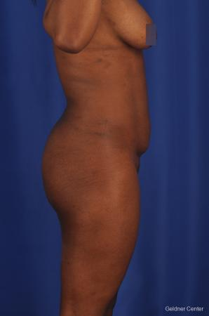 Tummy Tuck: Patient 4 - Before and After Image 3