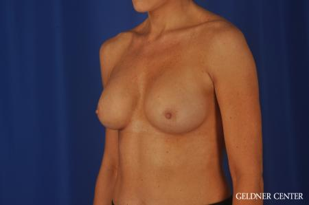 Chicago Breast Augmentation 8745 -  After Image 4