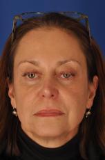 Facelift: Patient 7 - Before