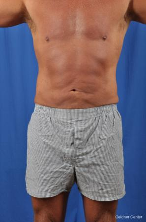 Liposuction-for-men: Patient 4 - After Image