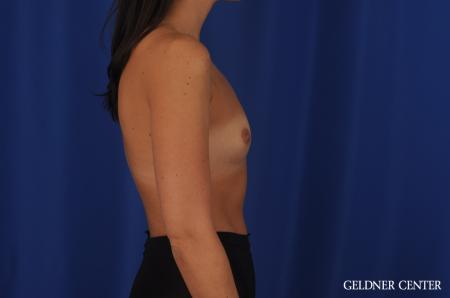 Breast Augmentation Hinsdale, 4290 - Before Image 3