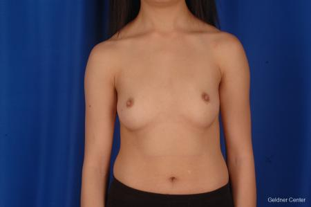 Chicago Breast Augmentation 2339 - Before Image 1