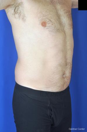Liposuction For Men: Patient 7 - Before Image 2