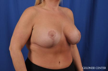 Breast Augmentation: Patient 143 - After 3