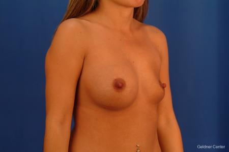 Chicago Breast Augmentation 2526 - Before Image 2