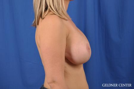 Breast Lift: Patient 40 - After Image 2
