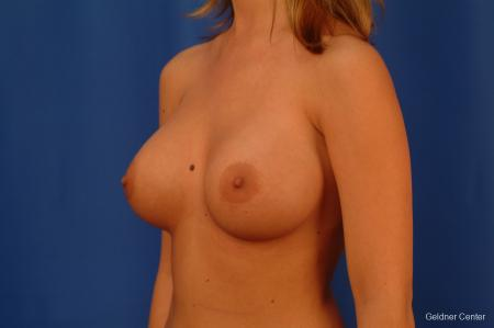 Breast Augmentation Lake Shore Dr, Chicago 2533 -  After Image 4