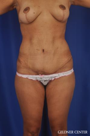 Tummy Tuck: Patient 33 - After Image 1