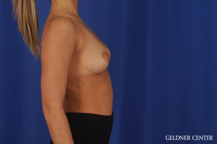 Breast Augmentation: Patient 109 - Before Image 3