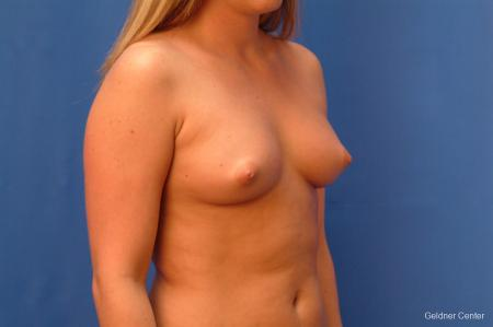 Chicago Breast Augmentation 2443 - Before Image 3