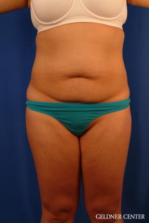 Liposuction: Patient 46 - Before Image 1