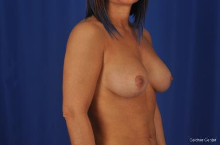 Chicago Complex Breast Augmentation 2336 -  After Image 3